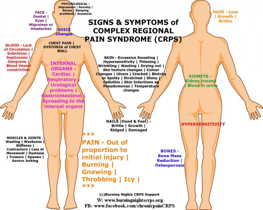 Signs Symptoms Of Complex Regional Pain Syndrome Burning Nights Crps