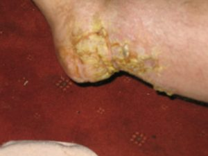 Final Stage ischaemia on foot and hair growth