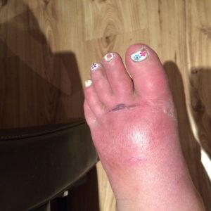 Stage 1 & 2 the skin is swollen with colour & temperature changes with blisters forming near the base of the toes