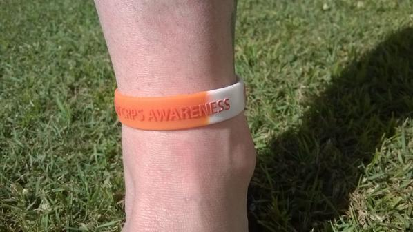 Fellow CRPS Sufferer showing an alternative way of supporting CRPS awareness, if u have upper limb CRPS is to put the Burning Nights wristband on your ankle