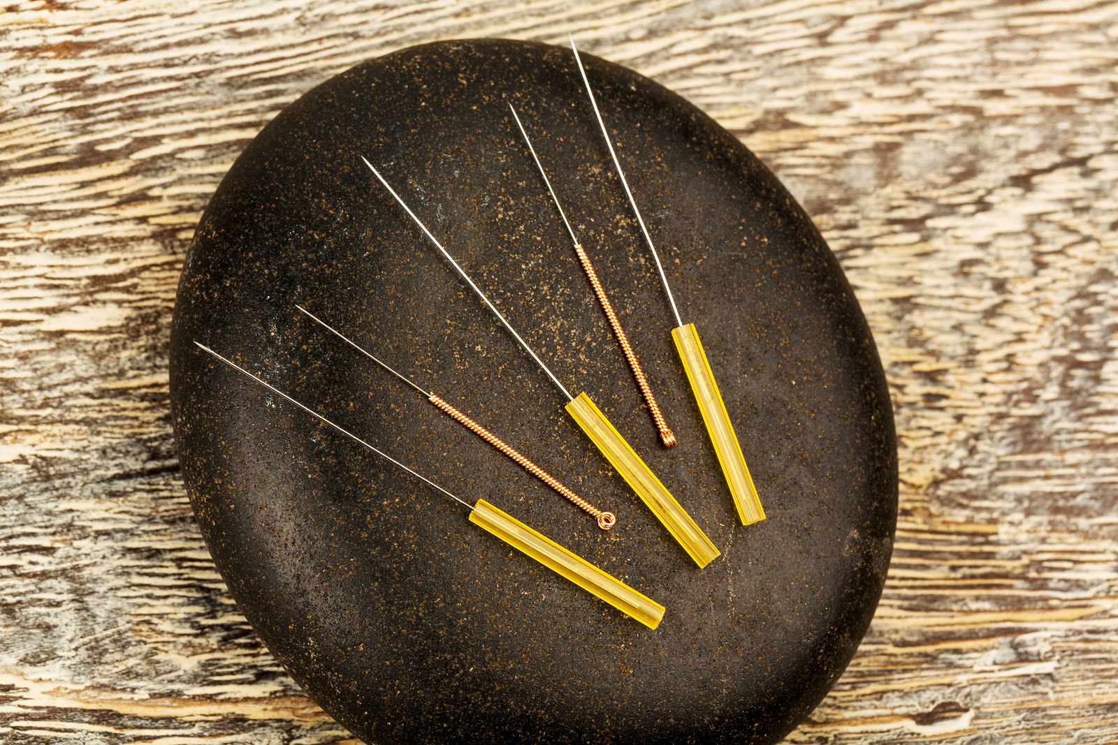 Beginners Guide to Acupuncture for CRPS (RSD) & Persistent ...