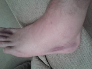 New CRPS Story - 2013-10-17 day after harley street