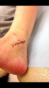 Jessica's CRPS story - after ligament repair op
