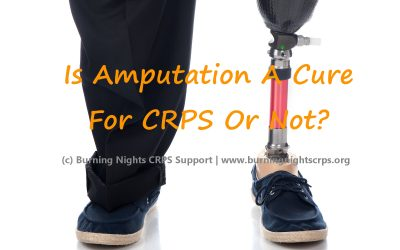 Is amputation for CRPS really or not? | Amputation for CRPS