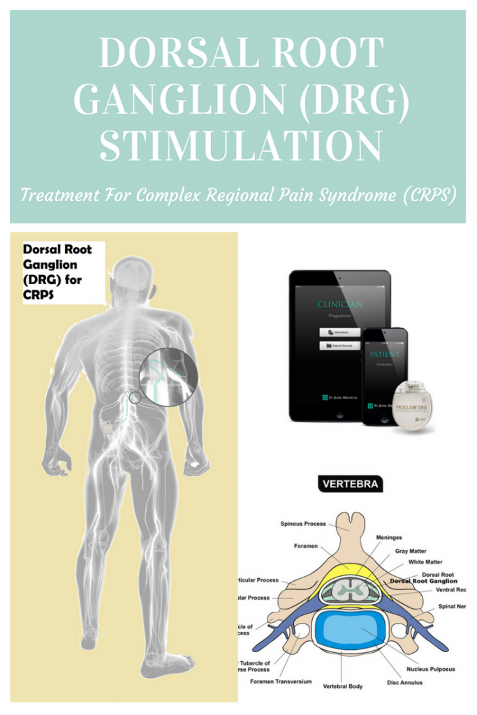 Dorsal Root Ganglion (DRG) Stimulation Treatment for Complex Regional Pain Syndrome (CRPS)