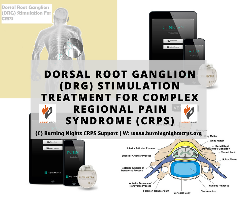Dorsal Root Ganglion Drg Stimulation Treatment For Complex