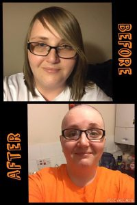 Lisa Davis before and After her head shave fundraiser | Burning Nights CRPS Support