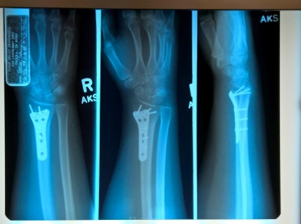 Read Stacey's CRPS Story and how she developed complex regional pain syndrome from an injury in March 2016. This is Stacey's x-ray from when she damaged her wrist